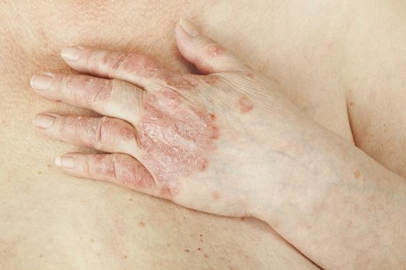 pikkelysömör a könyökön és a térdén kenőcs pikkelysömör kezelése népi gyógymódokkal kenőcs kátránnyal