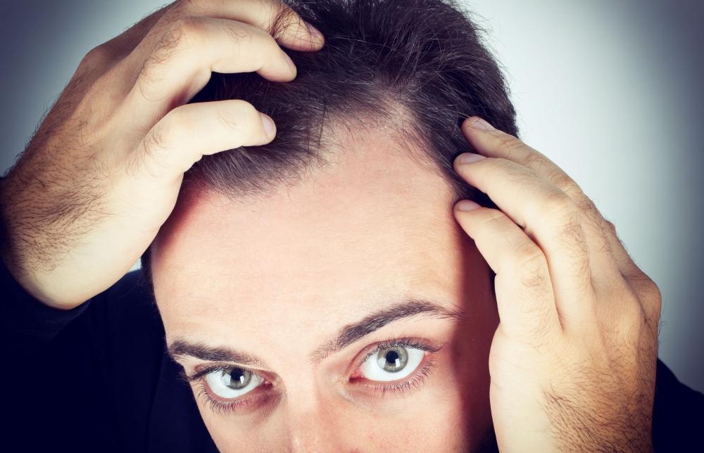 Láthatáron a kopaszodás valódi gyógymódja?