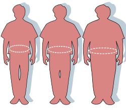Jelentős súlycsökkentéssel elérhető a kettes típusú cukorbetegség remissziója