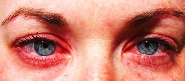 Immunterápiával az allergia ellen?