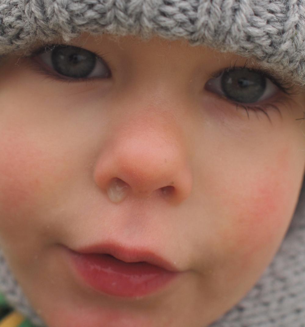 Miért folyik mindig a gyermekem orra?