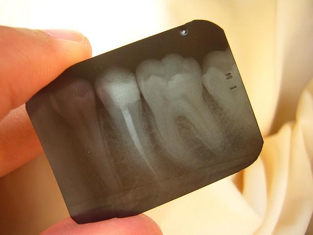 Házi praktikák és homeopátiás szerek fogfájás ellen