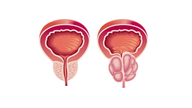 Tesztoszteronhiány: a férfi menopauza?