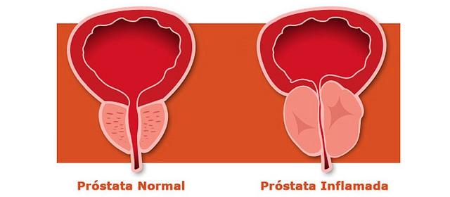 A tesztoszteron-kezelés nem növeli az agresszív prosztatarák kockázatát