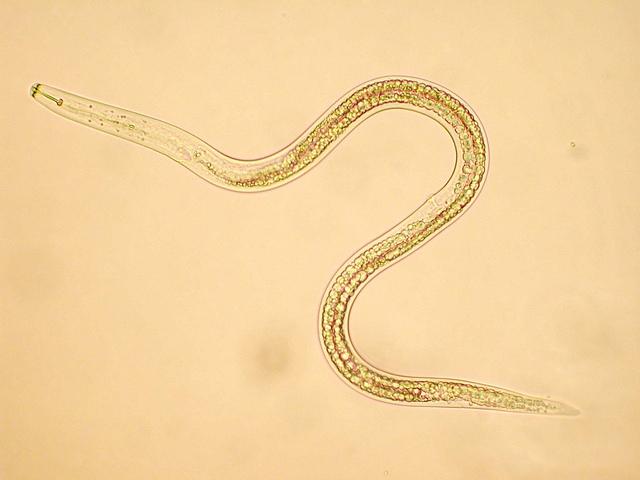 Rákos megbetegedést okozhat egy parazita daganatos sejtjei