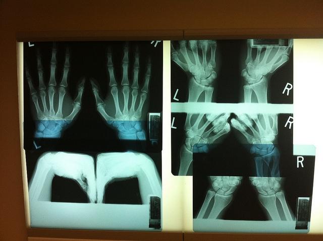 A Zalaegerszegi kórház új röntgen- és MRI-berendezések beszerzéséhez kapott forrásokat