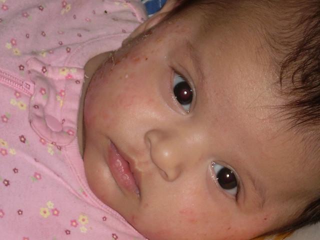Csecsemőkori ekcéma: szteroidot vagy sem?